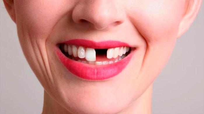 sognare_perdere_denti